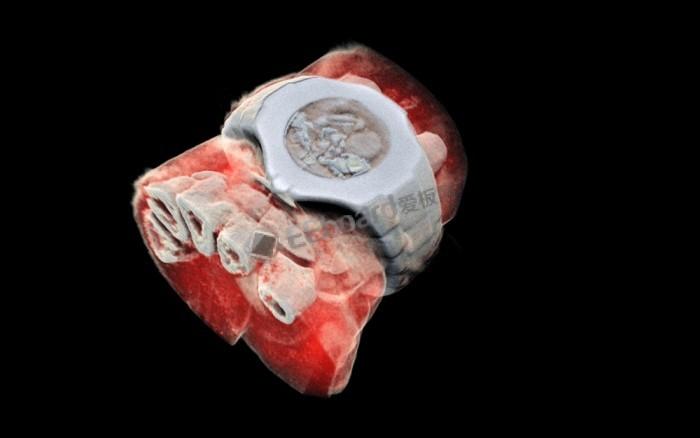 CERN芯片实现人体的第一张3D彩色X射线图像